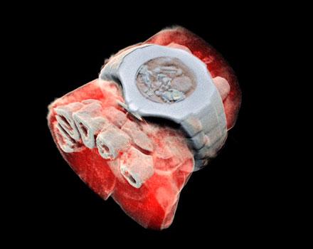 Llegan las primeras radiografías a color