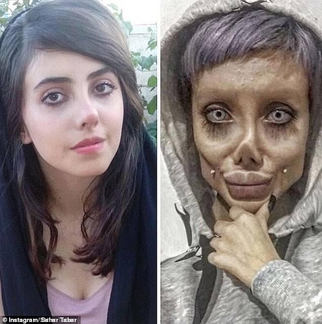 Arrestan a instagramer iraní por someterse a 50 cirugías